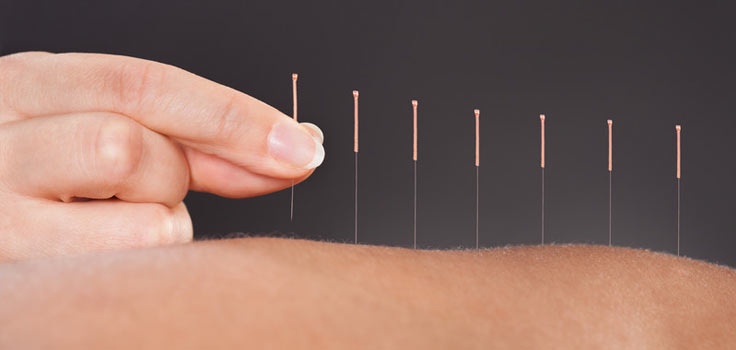 acupuncture-needle-back